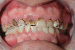 Figure 7  Preoperative condition shows severe destruction of the maxillary teeth.