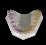 Figure 2  E4D Dentist can mill all-ceramic restoratives.