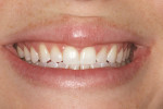 Figure 7  The preoperative smile shows small teeth surrounded by the large frame of the full lips.