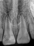 An 8-year-old female patient presented with a history of a traumatic fracture to tooth No. 8, which was repaired 3 weeks prior, and a clinical and radiographic exam consistent with pulpal necrosis with symptomatic apical periodontitis in a partially erupted immature tooth.