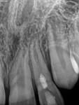 Complete apical closure as well as apical healing was noted at 1-year follow-up appointment.