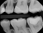 Postoperative bitewing radiograph taken to ensure complete cleanup of resin cement.