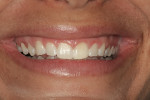 Figure 18  Preoperative full smile demonstrating excessive gingival display, short uneven teeth, and negative space in the buccal corridor.