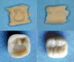 Figure 9  Block form provisional after removal from the mouth and hand carved.