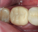 Figure 10  Block form acrylic provisional cemented in the mouth.