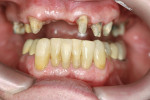 Figure 17  Prepared teeth showing gingival healing after 7 weeks.