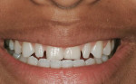 Figure 6  Preoperative smile.
