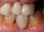 Full-contour zirconia implant crown seated intraorally.