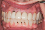 Preoperative retracted view showing discolorations, failing margins, and horizontal imbalance of incisor lengths.