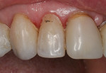 Failed laboratory-processed resin composite crown on the maxillary right lateral incisor.
