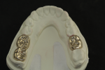 Fig 2. Milled gold crowns from Strategy Milling.