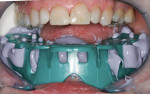 Figure 5  The full-arch impression was placed in the mouth using cheek retractors.