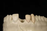 Fig 4. Removable alveolar cast with tooth removed. This facial position view shows how the soft tissue is supported by the tooth and root form.