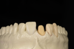 Fig 6. Removable alveolar cast with tooth removed. The incisal position view shows the form dictated by the emergence profile of the individual tooth. Each tooth emergence profile is different and should follow the individual form of its root emergence.