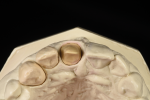 Fig 7. Removable alveolar cast with central shown from the incisal edge shows the marginal position of the preparation and the need for the technician to support the surrounding tissue marked in red.
