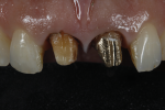 Fig 3. Initial situation, after the removal of the old crowns. The discoloration of No. 8 is obvious, as well as the problem that it would cause to the value and the illusion of depth of the gold cast post of No. 9.