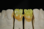 Fig 7. Opaque dentin A2 for No. 9 and opaque dentin A2 mixed with 20% opaque dentin white for No. 8.