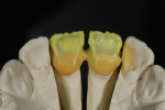 Fig 8. Palatal view with opaque dentin and cervical translucent.
