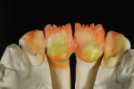 Fig 11. Palatal view.