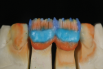 Fig 14. T-Blue opalescence to increase depth illusion in the middle of the teeth.