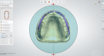 Fig 2. If the middle line is not defined by the dentist, it can be verified by the laboratory. Simply make the lower model less visible and place the occlusal plane in relation to the palatal suture.