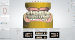 Fig 4. The 3Shape Dental System provides a default setup of the teeth, with tooth libraries provided in the lower screen.