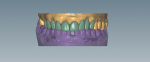 Fig 1. Using exocad in a CAD environment to design restoration.