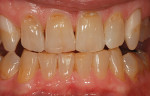 Preoperative tetracycline staining in a bruxism patient often requires several trays for extended treatment.