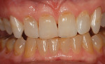 Posttreatment with 10% carbamide peroxide, teeth are lighter, but not white. One arch treatment improves compliance and helps demonstrate effectiveness.