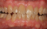 Moderately tetracycline-stained teeth that demonstrate uniform discoloration without severe gingival discoloration.