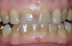 Tetracycline discoloration at the gingival area is less predictable, especially with multiple analogs causing different discolorations.
