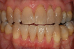 Moderately tetracycline-stained teeth with exposed root surfaces require informing the patient of the prognosis of the exposed root.