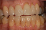 Six months of nightly bleaching with 10% carbamide peroxide lightens the teeth, but the root surfaces remain discolored.