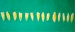 Fig 1. Single-rooted extracted teeth used in this study.