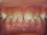 Early Childhood Caries Pre-Treatment Lesions. Image courtesy of Travis M. Nelson, DDS, MSD, MPH.