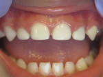 Patient in Figure 1 treated with 4 anterior Zirconia Crowns, Image courtesy of Travis M. Nelson, DDS, MSD, MPH.