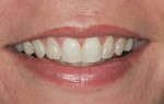 Figure 1  Natural smile before treatment.