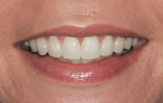 Figure 11  Natural smile with veneers inserted.