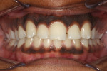 "Patient presented with an oversized single central incisor and a desire for a more ""normal"" appearing smile."