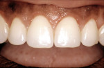 Figure 5  Esthetic crown lengthening uncovered significantly more of the clinical crowns.