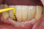 Bleeding on probing could be an indication for peri-implant disease.