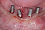 Lack of keratinized tissue can be noted, especially at mandibular right implants.