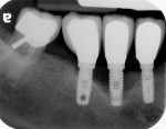 Radiographic appearance of different stages of peri-implant disease.