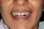 Photographs of existing dentition to be used for treatment planning.