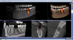 Galileos Implant Software makes it easy to plan and place implants with precision, safety, and accuracy.