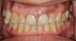 Fig 1. Photographs of existing dentition to be used for treatment planning.