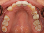 Fig 2. Photographs of existing dentition to be used for treatment planning.
