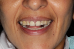 Fig 4. Photographs of existing dentition to be used for treatment planning.