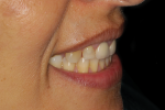 Fig 5. Photographs of existing dentition to be used for treatment planning.
