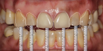 Fig 8. Revised smile design without anterior crown lengthening, per patient's request.